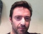 Hugh Jackman mostra foto após a cirurgia