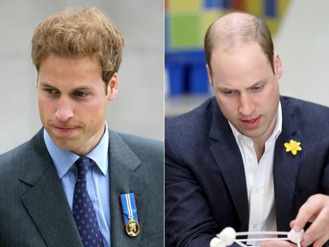 A causa da careca do príncipe William e soluções pra quem está na mesma