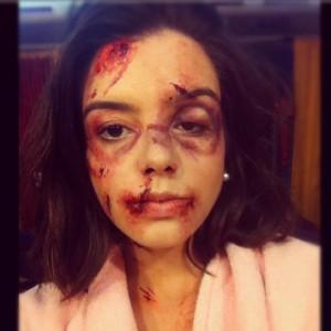 Giovanna Lancellotti aparece toda machucada no Instagram. De mentirinha, O.K?