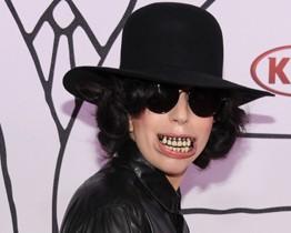 O que é isso, Gaga? Cantora segue esquisita e agora sem empresário