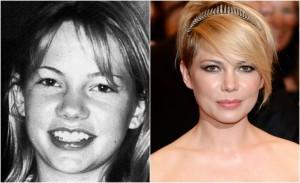 Almanaque Glamurama: o antes e depois de 30 super famosos. Vem!