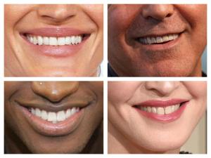 De quem é esse sorriso? Você consegue reconhecer essas 4 celebs?
