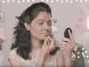 Indiana que teve rosto desfigurado será destaque da semana de moda de NY