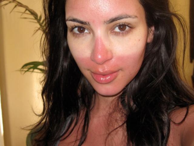 Kim Kardashian já foi vítima do sol no passado || Créditos: Reprodução Instagram