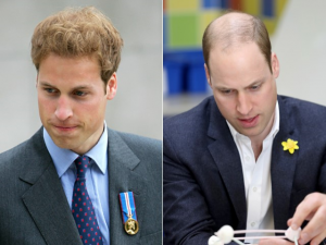 Antes e depois do príncipe William