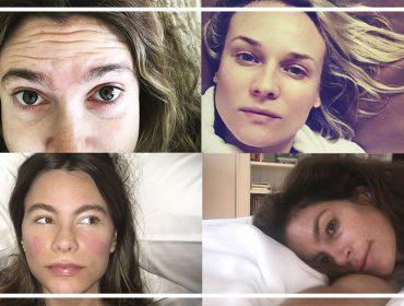 Elas acordam assim… As melhores selfies sem maquiagem das celebridades