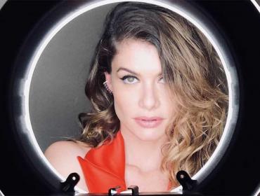 """Alinne Moraes: """"Estou perdendo a minha boca"""". Um papo sobre plástica, bullying… e perdão!"""