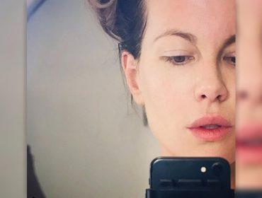 Kate Beckinsale se rende a tratamento de beleza polêmico feito com pele de bebês