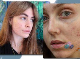 Skin Positivity! Conheça o movimento que foca na aceitação da pele imperfeita e descubra influenciadoras para seguir agora mesmo