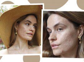 Acne Positivity: conheça o movimento de autoaceitação que ajuda mulheres que sofrem com espinhas