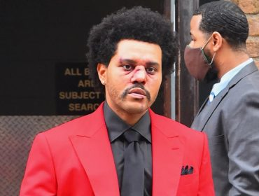 The Weeknd surge em público com um 'aparente nariz quebrado' e causa pânico em seus fãs