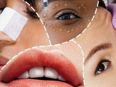 Novaiorquinos estão aproveitando o uso obrigatório de máscara para fazer plásticas no rosto
