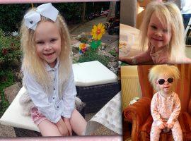 Garota com rara síndrome do cabelo impenteável consegue ajeitar os fios pela primeira vez em nove anos