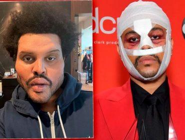 The Weeknd revela o significado de suas polêmicas mudanças no rosto pouco antes de show no Super Bowl