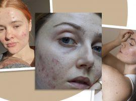 Ativistas da pele: Movimentos a favor dos rostos reais ganham força na pandemia