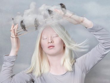 Chinesa albina abandonada pelos pais ganha os holofotes do mundo da moda. Conheça Xueli Abbing!