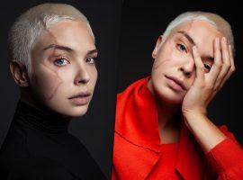 """Modelo da vez, Giulia Dias ressignifica cicatrizes causadas por acidente na infância e afirma: """"Amo o que elas representam"""""""