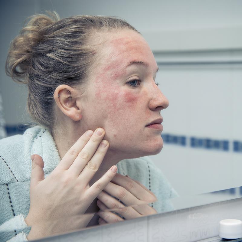 Estresse de pele