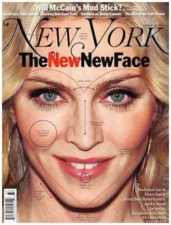 New York discute possíveis plásticas de Madonna