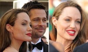 Angelina Jolie pode ter feito botox